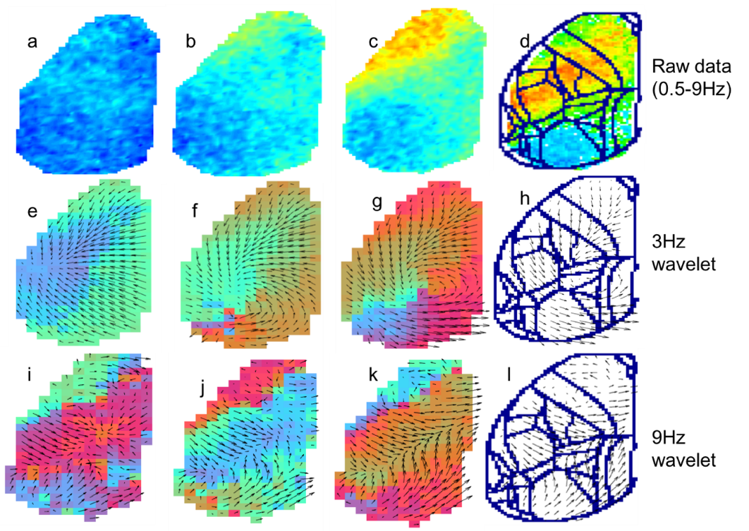 Complex cortical wave propagation: analysis and modeling